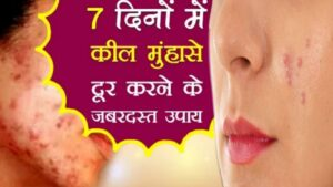 Read more about the article how to remove pimples naturally and permanently in one day at home in hindi