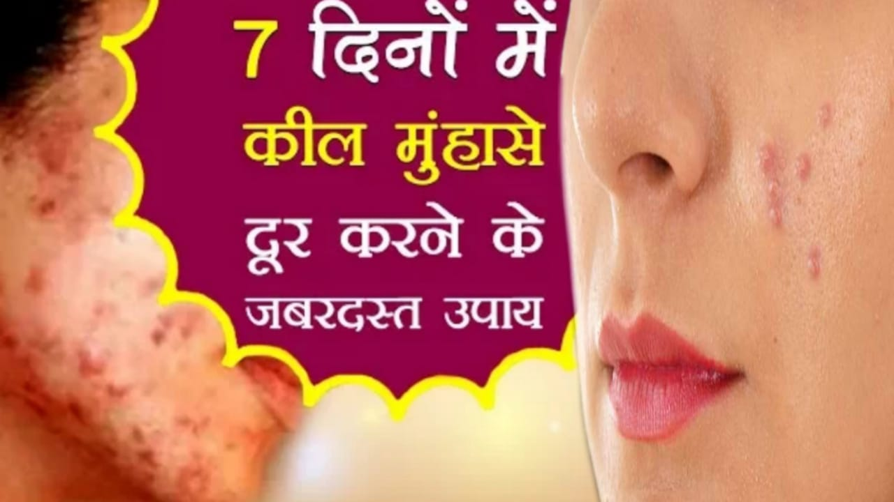 You are currently viewing how to remove pimples naturally and permanently in one day at home in hindi