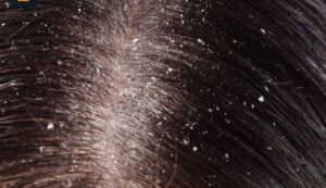 Read more about the article 9 Home Made Remedies To Get Rid Of Dandruff