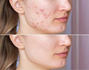 Read more about the article How To Remove Pigmentation From Face Permanently |10 Ways To Remove Pigmentation From Face