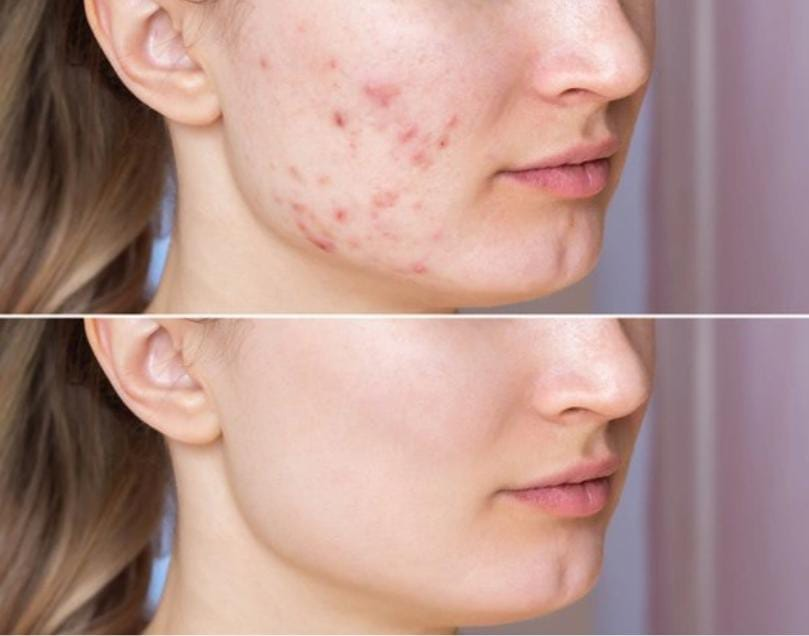 You are currently viewing How To Remove Pigmentation From Face Permanently  10 Ways To Remove Pigmentation From Face